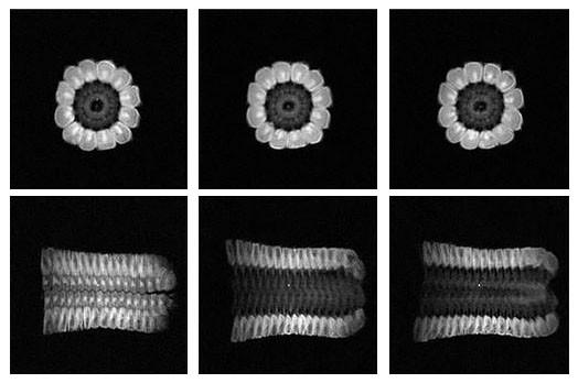 The MRI of Corn Cob